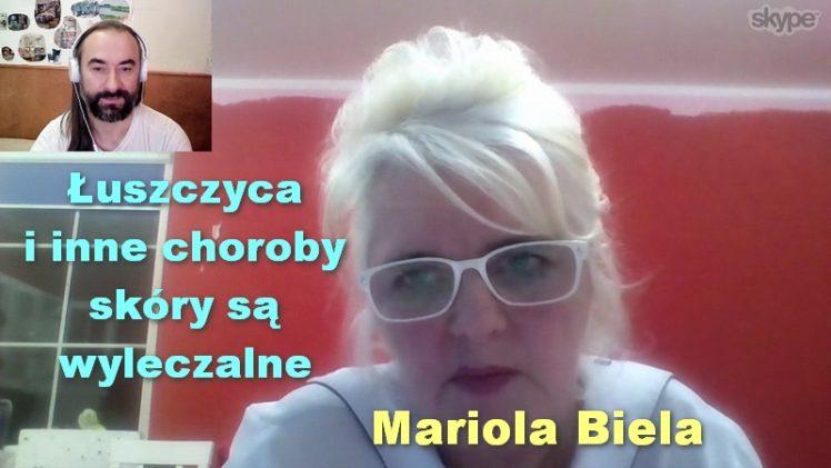 Łuszczyca i inne choroby skóry są wyleczalne – Mariola Biela
